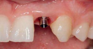 Implantatskrue indsat på patient hos SlagelseTand