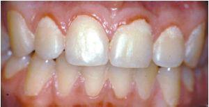 Dine tænder og paradentose