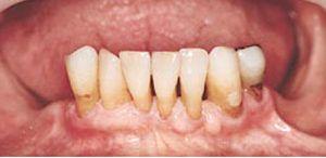 Tandkødsbetændelse og paradentose