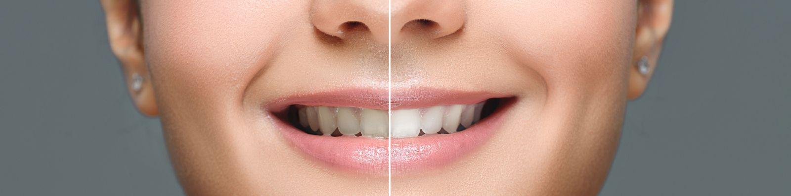 Tandblegning SlagelseTand